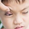 5 Заблуждений о лечении ячменя на глазу