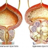 Аденома предстательной железы (аденома простаты)