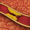 Атеросклероз сосудов головного мозга — лечение, симптомы, препараты