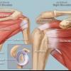Боль в плече как помочь при плечелопаточном периартрите, или вылечить боли в плече