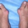 Болит косточка на ноге: возле большого пальца, мизинца