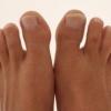 Бурсит большого пальца стопы — признаки и способы лечения