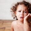 Чесотка у детей: симптомы и лечение, фото