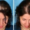 Что делать при сухой коже головы