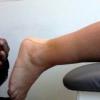 Что такое бурсит, какое нужно лечение?