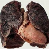 Генетические мутации от курения, приводящие к раку легких, могут происходить за 20 лет до агрессивного роста опухоли