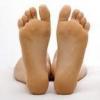 Гипергидроз стоп ног