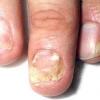 Грибок ногтей на ногах. Фото.