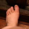 Грибок ногтей на ногах - лечение и профилактика