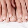 Грибок ногтей на руках - лечение