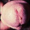 Хламидиоз у мужчин: лечение, симптомы, фото
