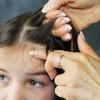 Лечение педикулеза у детей. Как легко вывести вши у ребенка?