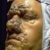 Излечим ли сифилис?