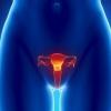 Как лечить фиброму матки