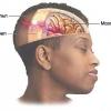 Как лечить сотрясение головного мозга народными средствами?