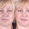 Как убрать морщины на лице и шее
