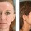 Как выбрать косметику для проблемной кожи лица