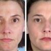 Как выбрать увлажняющий крем для жирной кожи