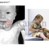 Как вылечить дерматит у ребенка?