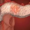 Как вылечить хронический панкреатит. Рецепты от хронического панкреатита