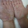 Как вылечить шелушение кожи?