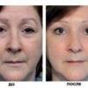 Какие косметические средства подходят для сухой кожи лица