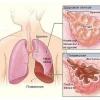Кашель и хрипы в горле и легких при дыхании у детей и взрослых