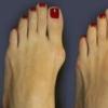 Косточки и шишки на ногах
