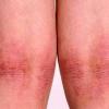 Лечение атопического дерматита различными методами