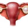 Лечение кисты желтого тела правого и левого яичника: симптомы, причины