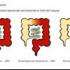 Лечение неспецифического язвенного колита