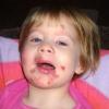 Лечение стрептодермии у детей