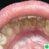 Лечим зубной камень
