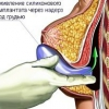 Маммопластика