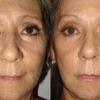 Обзор масок от морщин в домашних условиях