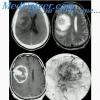 Опухоль головного мозга