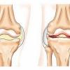 Остеоартроз коленного сустава называют гонартрозом