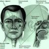 Озена. Причины, симптомы и лечение озены