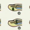 Панариций (нарыв на пальце) – острое гнойное воспаление тканей пальца.