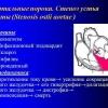 Пороки сердца аортальные