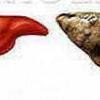 Причины и симптомы жирового гепатоза печени