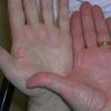Причины низкого гемоглобина у детей, взрослых, пожилых людей