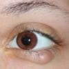Причины появления жировика на глазу и способы удаления