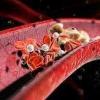 Причины высокого холестерина в крови