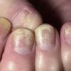 Проблема с ногтем