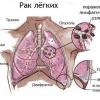 Рак легких можно вылечить комплексной терапией