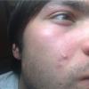 Раздражение на лице