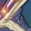 Разрыв связок, лечение разрыва связок