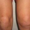 Синовит коленного сустава: виды заболевания и его основные признаки