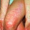 Скарлатина у взрослых — симптомы, лечение, признаки
